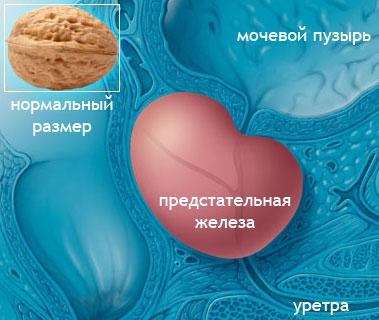 Увеличенная предстательная железа